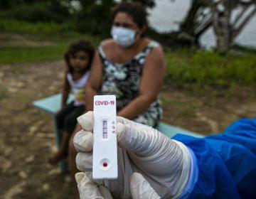 Con 34,000 muertos Brasil supera a Italia como el tercer país con más decesos por coronavirus