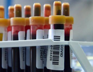 Los anticuerpos del coronavirus duran alrededor de dos meses, dice estudio preliminar