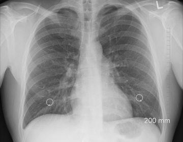 Joven de 20 años recibe trasplante doble de pulmón tras padecer coronavirus