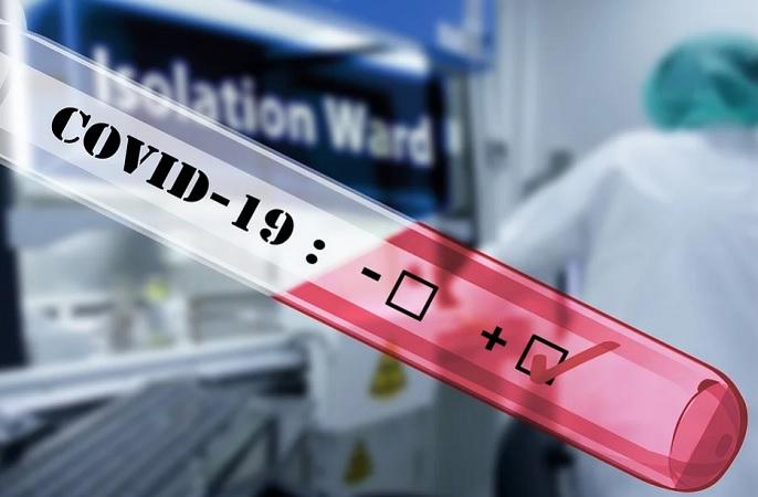 Se registran tres recontagios de Covid-19 en Aguascalientes