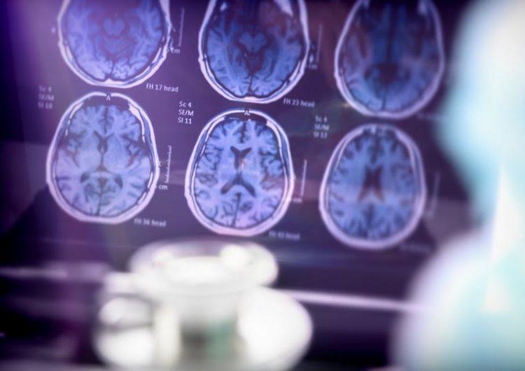 Psicólogos descubren que los humanos tienen más de 6,000 pensamientos al día