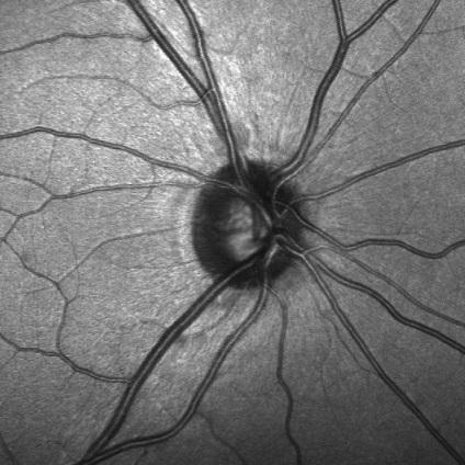Científicos detectan por primera vez células madre en la región del nervio óptico