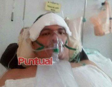 Tras infectarse, empleado en Puebla, manda mensaje a quienes no creen en el virus