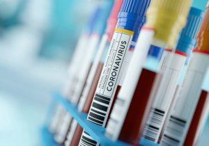 Por qué no hay pruebas de que el coronavirus fue creado en un laboratorio