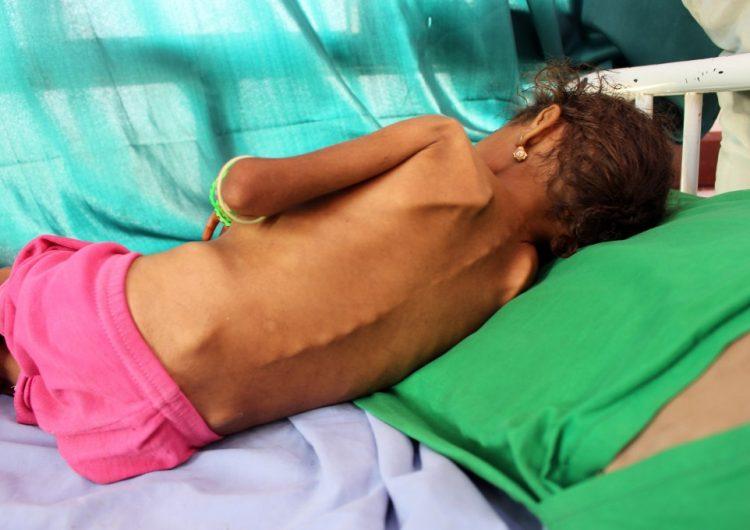 El hambre infantil alcanza niveles récord en Yemen, la peor crisis humanitaria en el mundo