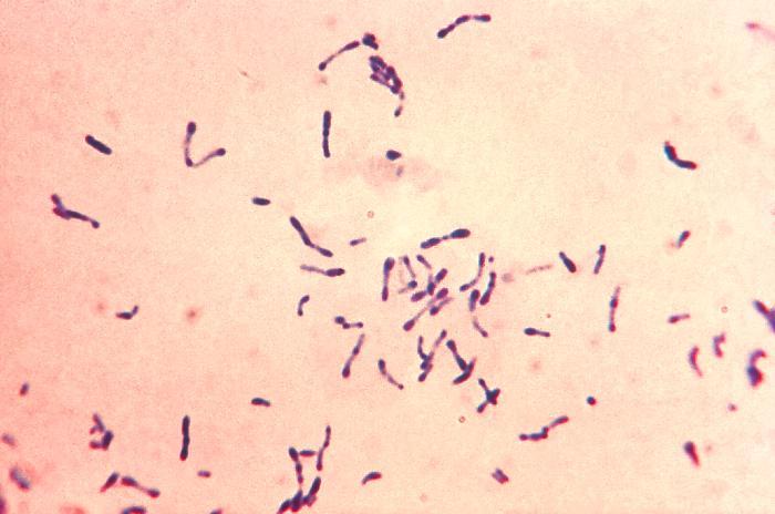 Perú emite alerta tras detectar el primer caso de difteria en 20 años