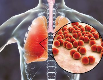 Vacuna contra la neumonía: inmunidad para unos cuantos