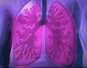 Dará CRIT rehabilitación pulmonar a pacientes de Covid-19