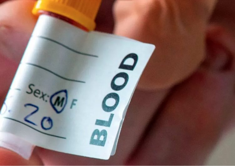 Un análisis de sangre que detecta 50 tipos de cáncer ya está en prueba