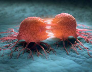 Qué es el histiocitoma fibroso angiomatoide, enfermedad que causó la muerte de un participante de MasterChef