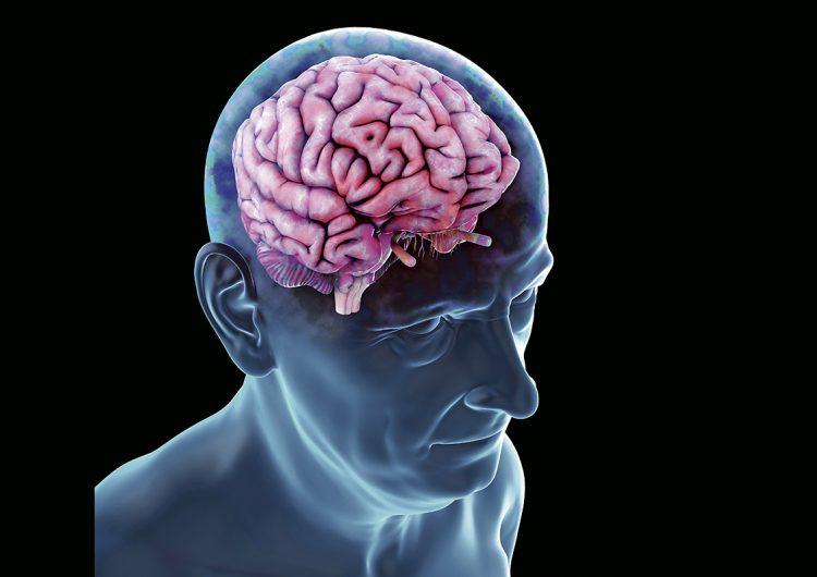 Tratamientos efectivos contra el alzhéimer: ¿qué tan pronto estarán disponibles?