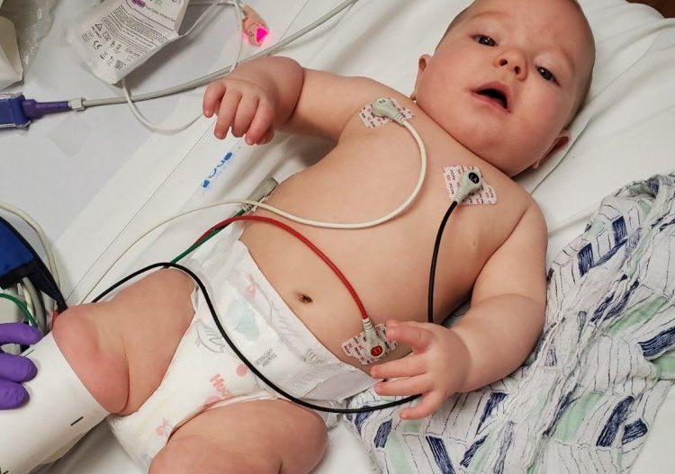 El cerebro de un bebé se inflamó después de contraer el COVID