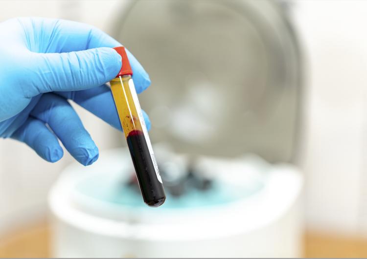 Administración de plasma de recuperados en adultos mayores con COVID-19 reduce gravedad: estudio