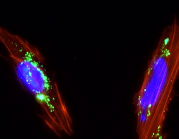 El transplante de células madre ayuda a reparar el daño de COVID-19 en casos graves