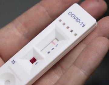 Advierte ISSEA por venta irregular de pruebas rápidas para detectar Covid-19