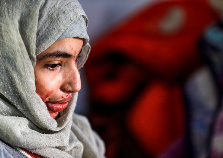 El calvario de las mujeres en Yemen: 'Me agarró del pelo y me derramó ácido'