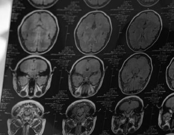 Egresados de CETYS revisan afectaciones a la memoria y lenguaje en personas recuperadas de COVID-19