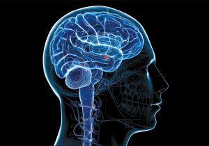 El COVID-19 así ataca al cerebro