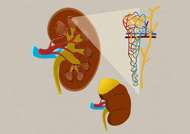 Los hábitos saludables mejoran la condición renal crónica