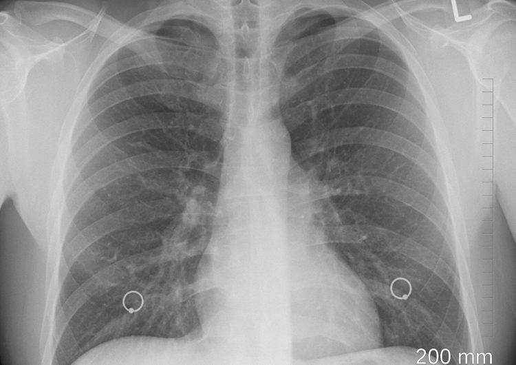 ¿Te recuperaste de COVID-19? Una revisión médica periódica garantiza la calidad de vida