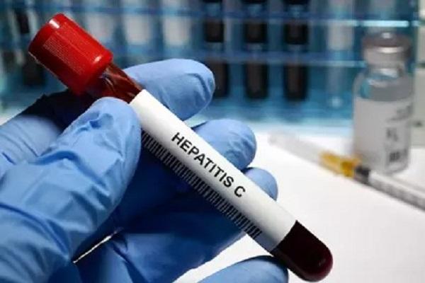 Ofrece ISSEA tratamiento para curar la hepatitis C en 3 meses