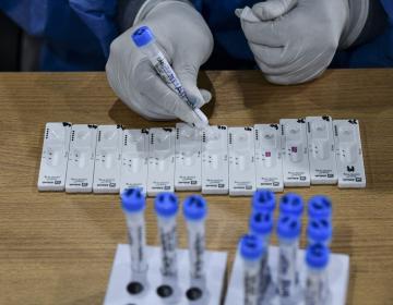 Científicos de la Universidad de Stanford identifican caso de 'doble mutante' de covid-19