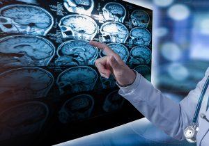 Esclerosis múltiple: la enfermedad de las mil caras