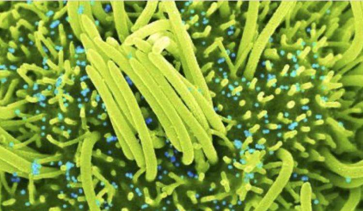 Científicos descubren virus similares al SARS-CoV‑2 en murciélagos; 'son capaces de infectar células humanas'