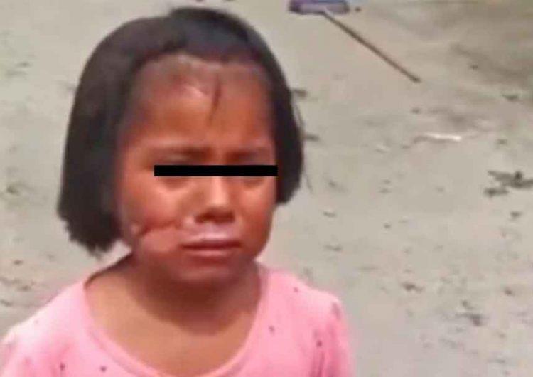 Bajo resguardo del DIF Puebla joven quemada por su abuela