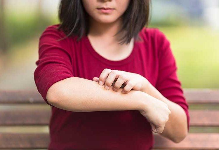 Tres de cada diez adolescentes mexicanos padecen dermatitis atópica… ¿En qué consiste?