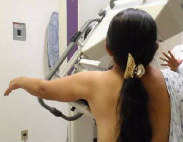 Retoma ISSEA programa de mastografías a mujeres sin seguridad social
