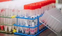 Combinación de medicamentos probada en hámsteres 'domina efectivamente' infección del covid-19