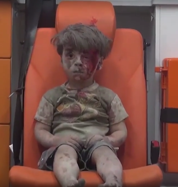 Omran, el niño sirio convertido en símbolo de la guerra en Alepo
