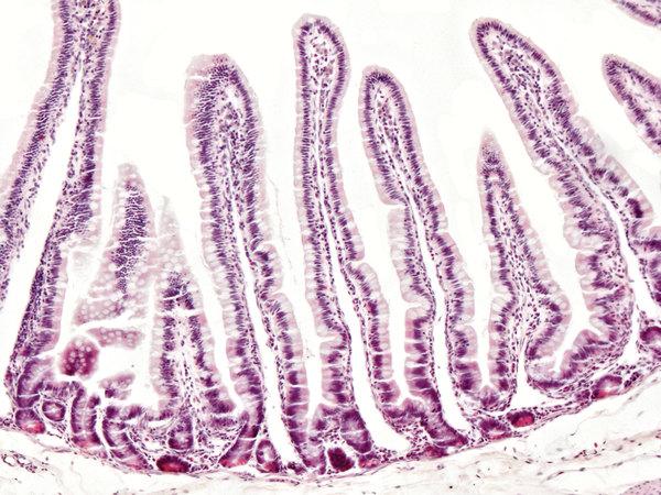 Un virus que puede  llevar a cenar