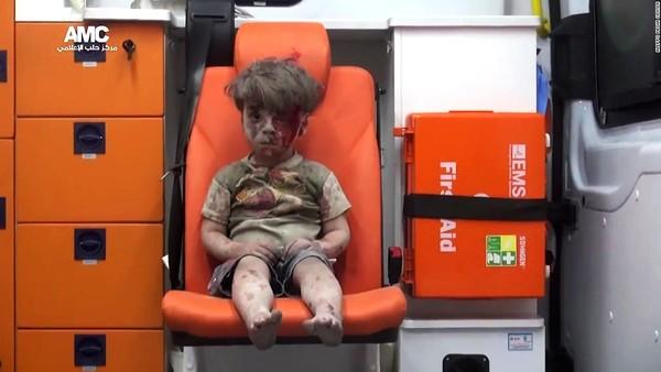 Omran, el niño sirio rescatado en Alepo, un caso entre millones