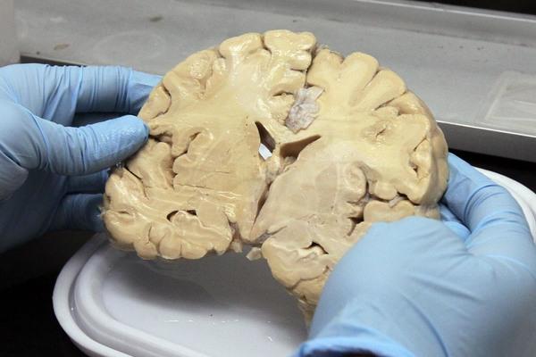 Los efectos del estrés en el cerebro