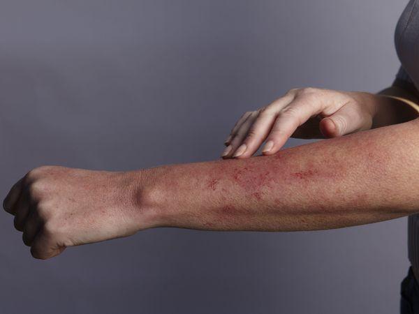 Conmemoran la lucha de los pacientes con lupus