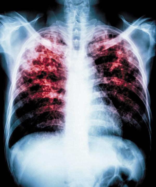 pulmones-contaminación-aire